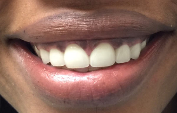 Gentle Biodentistry after