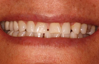 Gentle Biodentistry before
