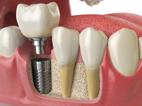 Can Dental Implants Be Removed?